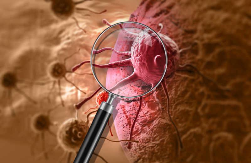 nowotwór o nieznanym umiejscowieniu pierwotnym