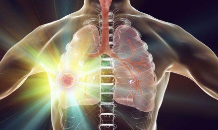 Radiochemioterapia raka niedrobnokomórkowego płuca