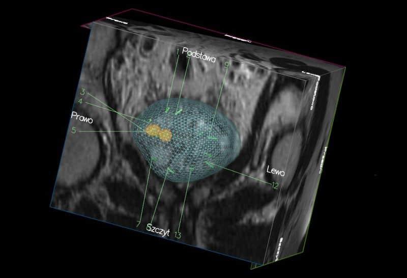 Biopsja fuzyjna gruczołu krokowego – diagnostyka raka prostaty