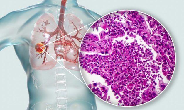 Rak płuca w trzecim stopniu zaawansowania – nowe możliwości leczenia