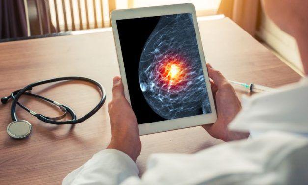 Pertuzumab – refundacja podwójnej blokady we wczesnym HER2+ raku piersi