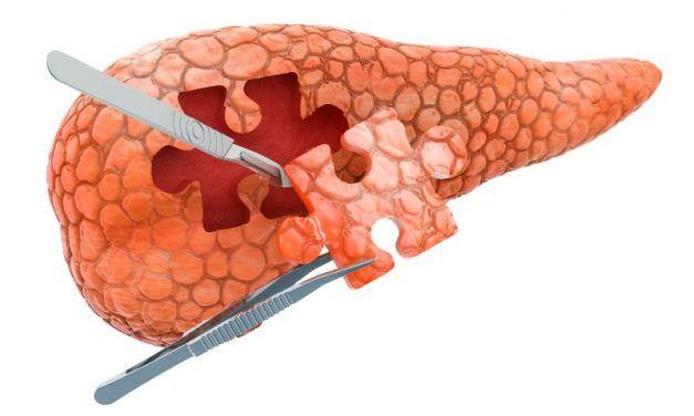 Rak trzustki BRCA-zależny