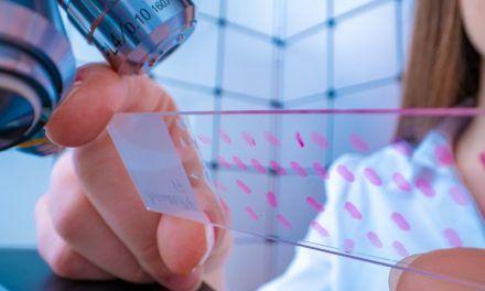 Rola mutacji BRCA w raku jajnika