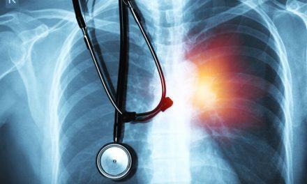Prof. Maciej Krzakowski – szanse na skuteczniejsze leczenie raka płuca