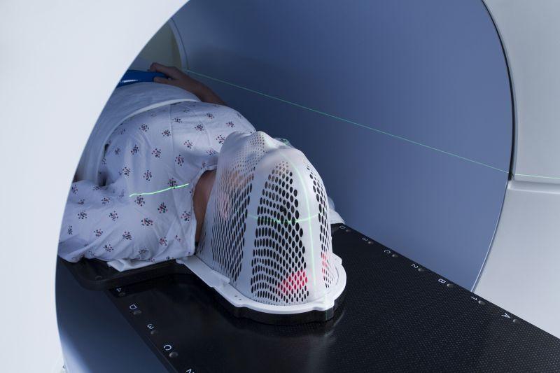 Tomoterapia – lepsza ochrona tkanek zdrowych podczas radioterapii