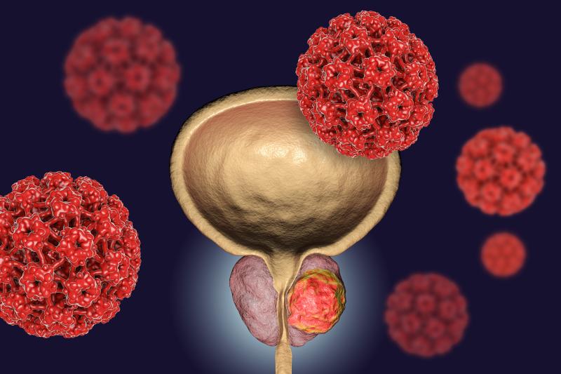 FDA: olaparib w leczeniu BRCA-dodatniego raka prostaty