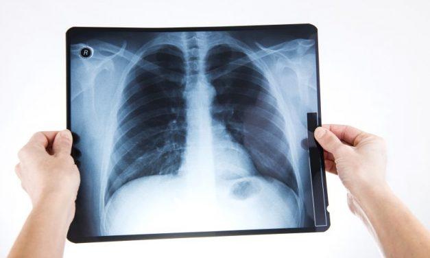 RTG klatki piersiowej – badanie rentgenowskie w diagnostyce raka