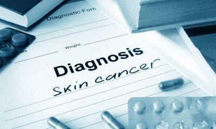 Rak kolczystokomórkowy skóry – objawy i leczenie