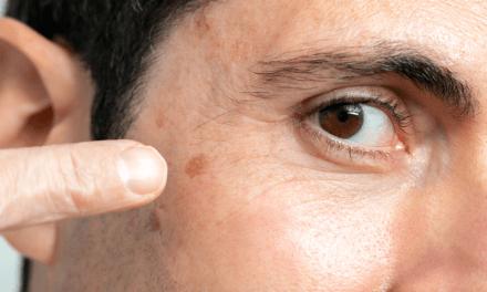 Rak podstawnokomórkowy skóry – objawy, diagnostyka, leczenie